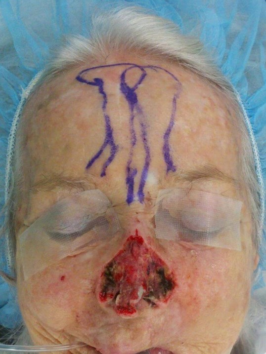 Forehead Flap Nose Surgery Before